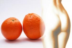 cellulite geeft een sinaasappel effect bij benen, billen en buik